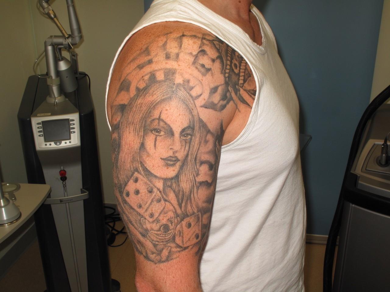 Tattooentfernung am Arm mittels Laser
